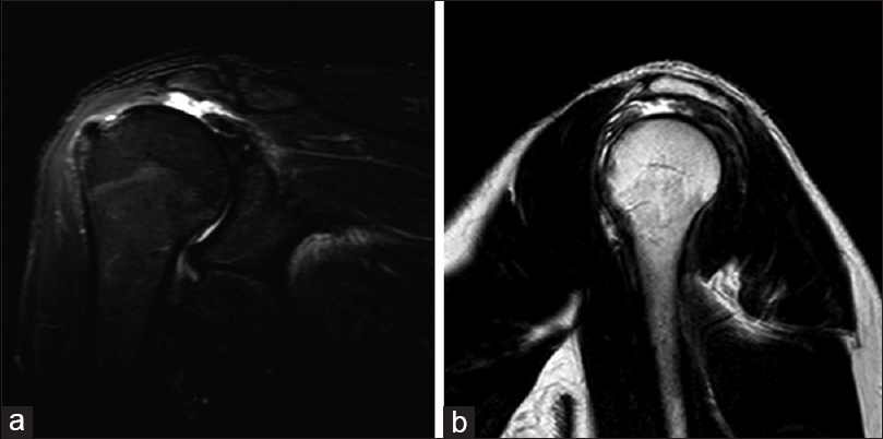 Figure 3: Coronal STIR image (a) and sagittal T2 image (b) showing a complete tear of the supraspinatus tendon, which is retracted medially, uncovering the humeral head, with subacromial bursal fluid collection. Reproduced from Rabou Radiopaedia.org, from the case of complete tear of supraspinatus tendon. This is an open-access article distributed in accordance with the terms of the Creative Commons Attribution (CC BY 3.0) license, which permits others to distribute, remix, adapt and build upon this work, for commercial use, provided the original work is properly cited. See: <a target=