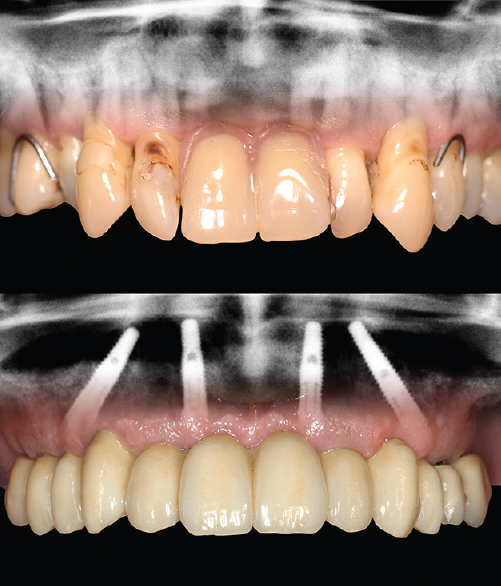 Figure 1: Superimposition of clinical pictures and radiographs visualising the quick and highly aesthetic transition from a failing dentition with a removable partial denture (above) to a fixed full-arch bridge on four implants in the upper jaw (below)