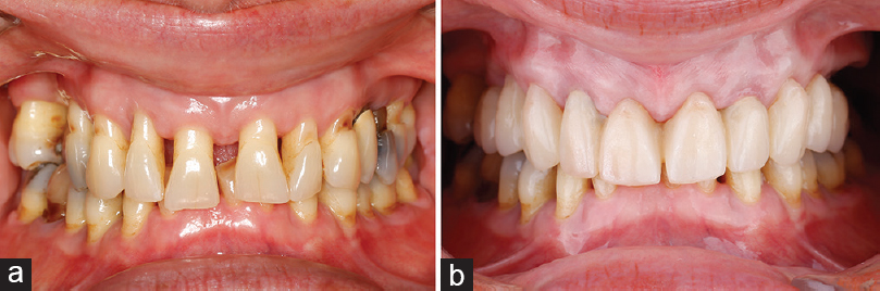 Figure 2: Intraoral photographs of a young female patient suffering from aggressive periodontitis before (a) and following immediate All-on-4<sup>&#174;</sup> implant placement and full-arch provisional restoration on the same day (b)