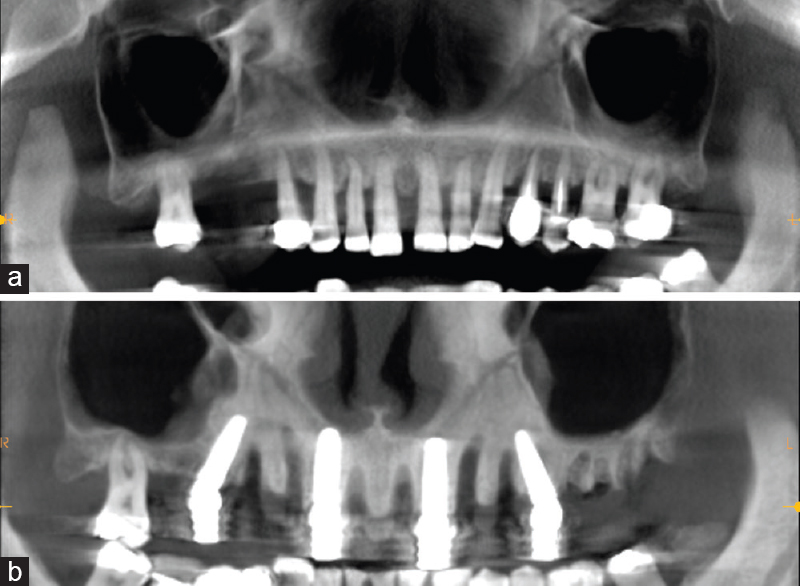 Figure 3: Panoramic radiographs before extraction of the failing dentition in the upper jaw (a) and after immediate placement of four implants (b)