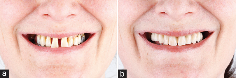 Figure 4: Significant aesthetic improvement demonstrated on frontal photographs before (a) and after immediate implant restoration (b) on the same day