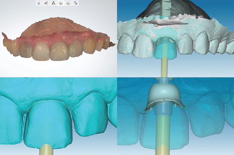 Figure 2: Digital workflow: Intraoral optical scanning of the tooth and surrounding soft tissues obviate the need for traditional impressions, three-dimensional planning of custom-made zirconia ceramic abutments that replicate the anatomy of the natural tooth (Copy-abutment technique) and computer-aided design and computer-aided manufacturing of the implant crown