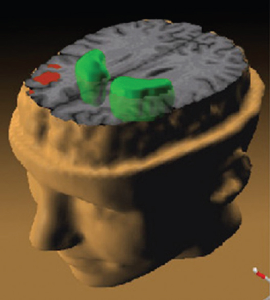 Figure 2: A Functional magnetic resonance imaging study of the patients with schizophrenia. While they performed a working memory task, the less the prefrontal cortex (red) activated and the more dopamine increased in the striatum (green)<sup>[31]</sup>
