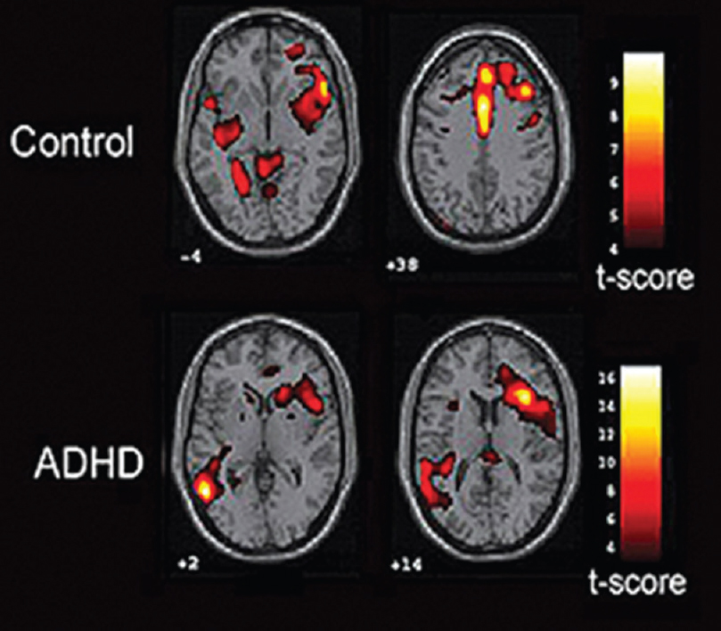 Figure 6: Functional magnetic resonance imaging is revealing information about brain regions and processes involved in attention deficits<sup>[50]</sup>