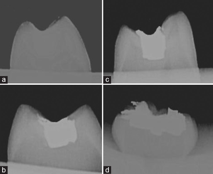Figure 4: Radiograph of class I restorations after seven rounds. (a) Intact composite restoration; (b) damaged composite restoration; and (c and d) damaged amalgam restorations