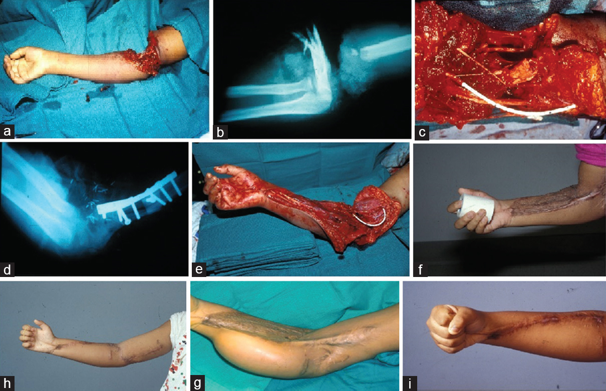 Microsurgical Reconstruction of the Upper Extremity